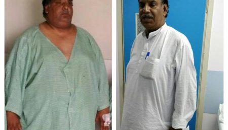 The life after Bariatric surgery