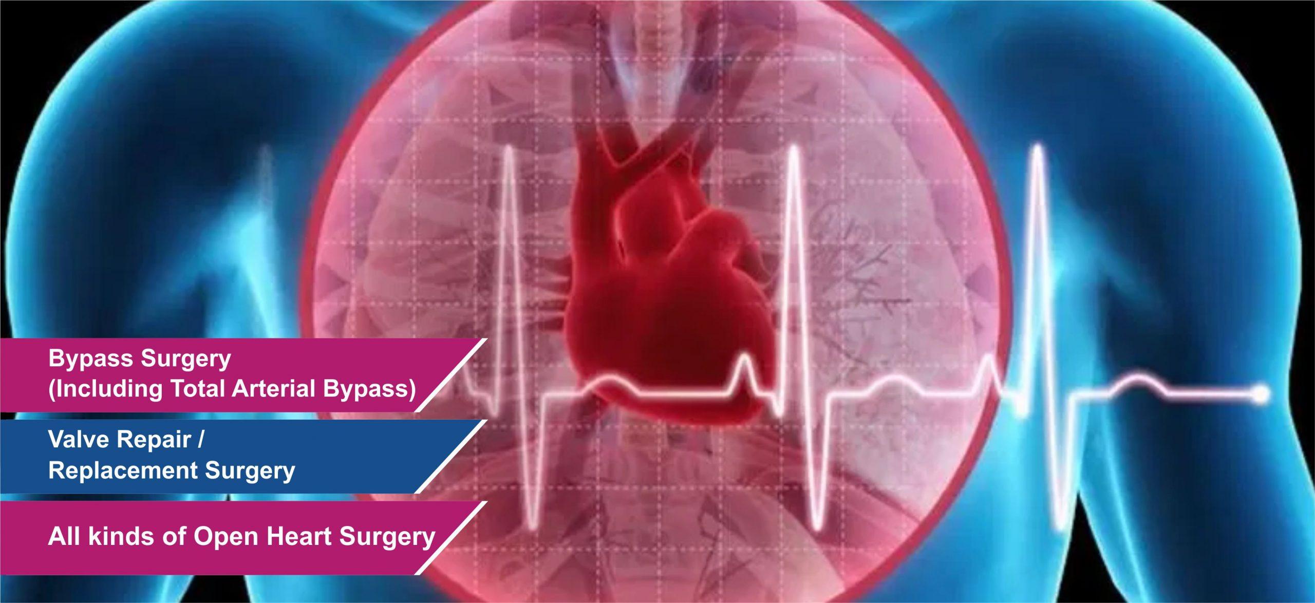 cardiac 3